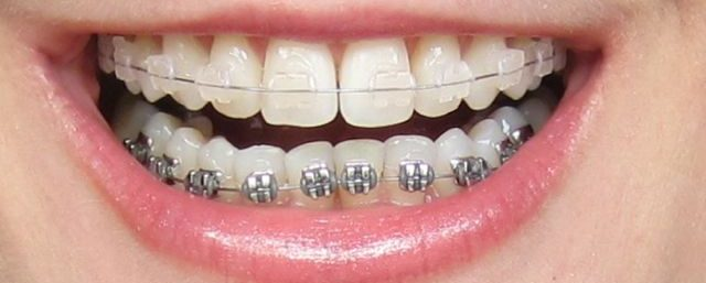 Fast Braces and traditional braces