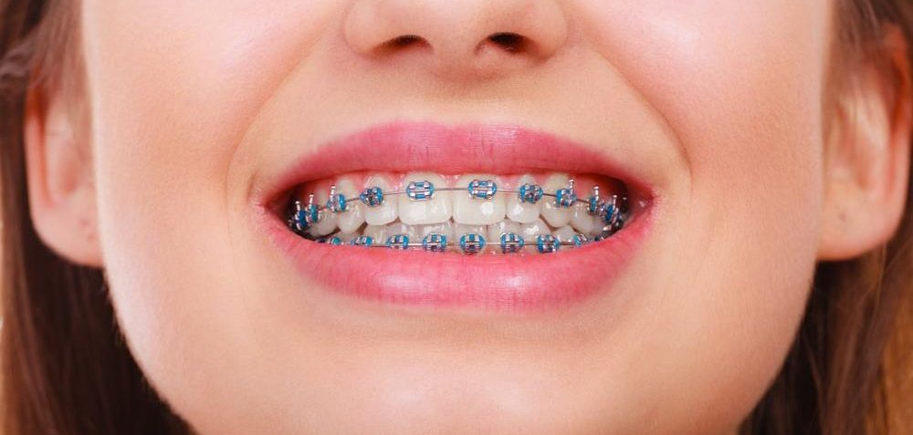 Fast Braces such a great option for teenagers