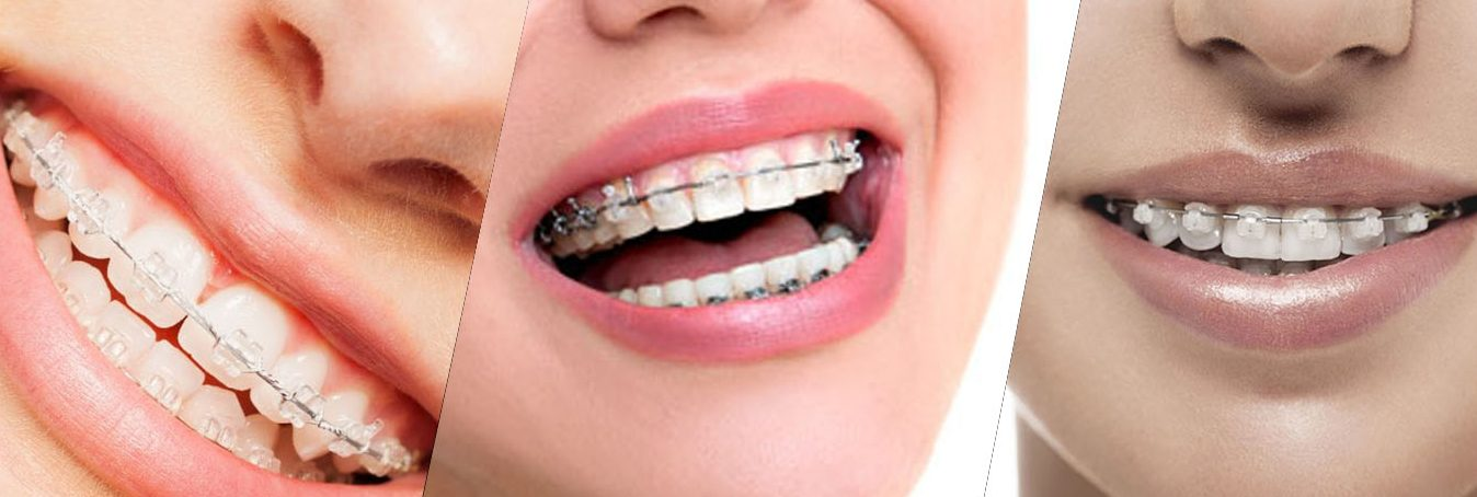 Fast Braces for adults are a great option for teeth straightening