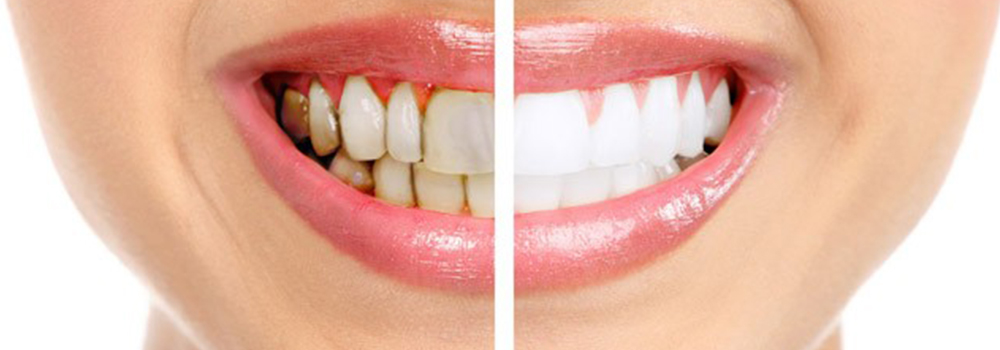 Fast Braces and traditional braces compare