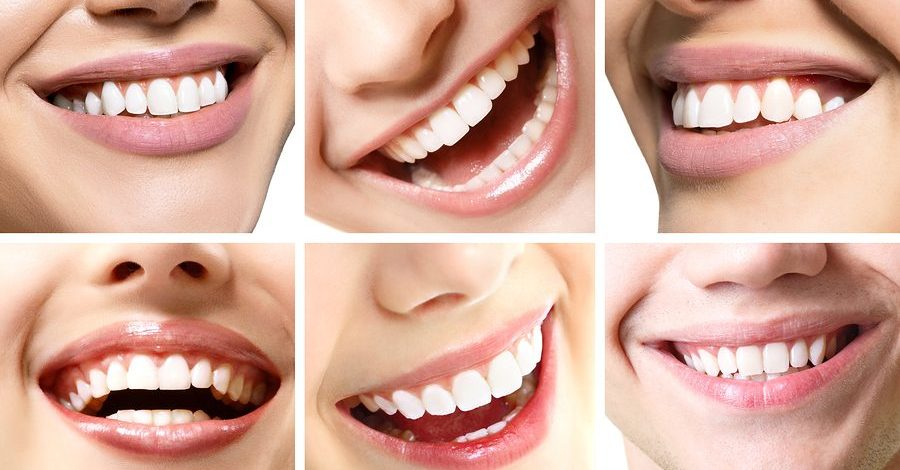 Fast Braces give you the smile you've always dreamed of without the pain of traditional braces