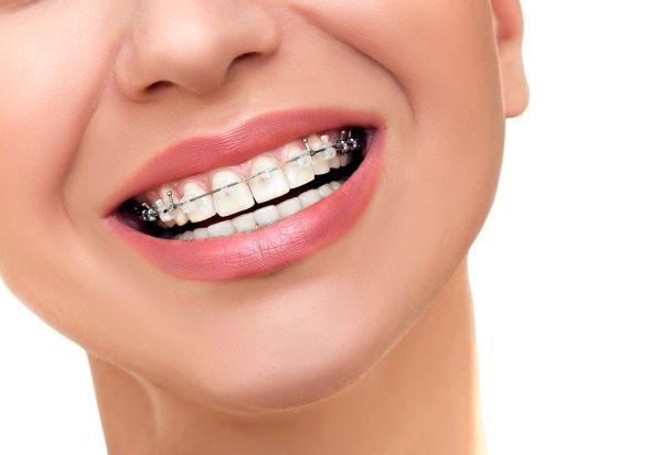 fast-braces-for-adults-of-la-puente
